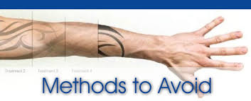 canberra tattoo removal tattoo removal 73 anthony rolfe ave