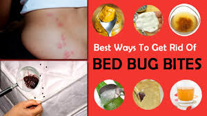 remedies for bed bug bites how to treat bed bug bites with home remedy youtube