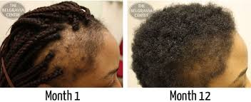 best haircut for alopecia afro caribbean hair loss