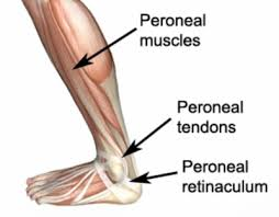 Foot Ligament Anatomy Peroneal Tendon Subluxation Peroneal Tendon Dislocation