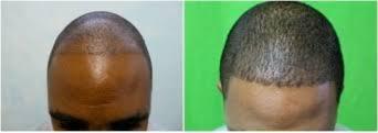 hair transplant america african american fue hair transplant dermhair clinic 1 310 318 1500