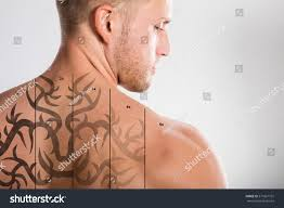laser tattoo removal on shirtless mans stock photo 571667101
