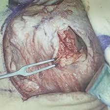 Anterior Fibular Ligament Chronic Instability Podiatry Orthopedics U0026 Physical Therapy
