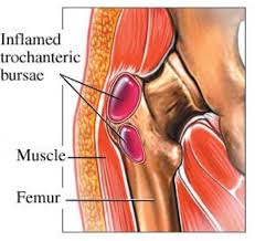 hip trochanteric bursitis diagnose treatment u0026 prevent it