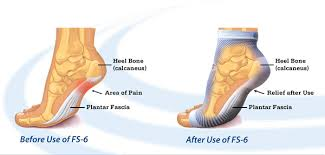 Can You Wear Compression Socks To Bed Compression Foot Sleeve Plantar Fasciitis Foot Pain Relief