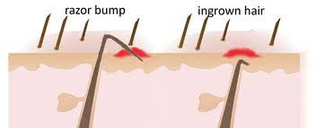 types of ingrown hair what causes razor bumps vaderma laser hair removal
