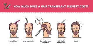 hair transplant calculator how much does a hair transplant surgery cost