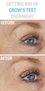 55 best wrinkle prevention and treatment images on pinterest