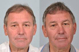 hair plugs for men bryan robson hair transplant update after 12 months