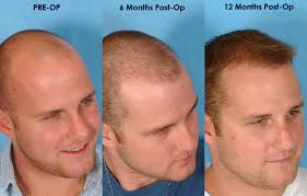 how thick is 1000 hair graft hair transplant surgery newinhairtransplant