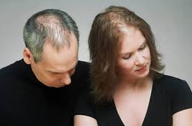 what causes hair loss in women over 50 what causes women and men to lose their hair we say yes program
