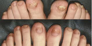laser nail fungus removal san diego san diego medical spa
