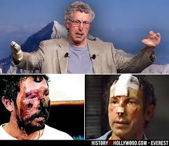 film everest fakty beck weathers frostbite beck weathers severe frostbite is visible