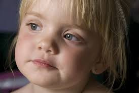 What Is Congenital Blindness My Blind Child Blind Issues Independent Living Blind Daily Life