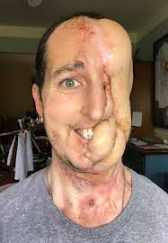 Cancer On Floor Of Mouth Pictures by Man Who Lost Half His Face To Cancer Successfully Has Face Rebuilt