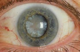 Can Cataracts Cause Blindness New Chemical Compound To Cure Cataracts Engineer Pal