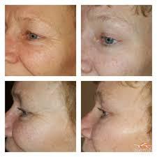 salon masoero 56 photos u0026 11 reviews skin care 7226 135th pl