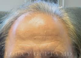 old hair at 59 hair rejuvenation lopa yogesh gupta m d faao faacs