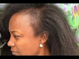 hair stylist gor hair loss in nj atlanta hairstylist take care of clients hair suffering from