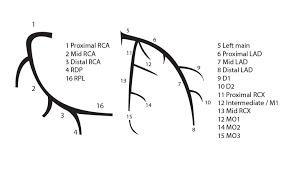 Anatomy Of The Heart Lab Coronary Anatomy Pcipedia