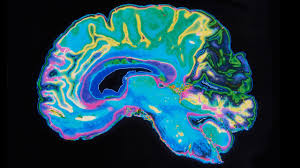 The Anatomy Of The Human Brain The Brains Of Men And Women Aren U0027t Really That Different Study
