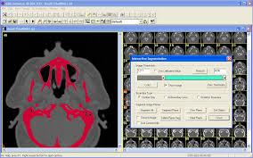 3d Medical Software 3d Doctor Medical Modeling 3d Medical Imaging Tutorial