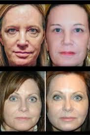 8 best reset for sun damage images on lip wrinkles