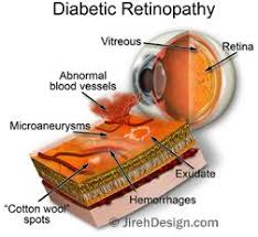 Diabetic Blindness Diabetic Retinopathy Information Tampa Bay Area