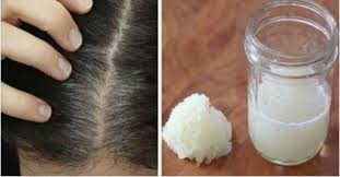 homemade malibu treatment for hair onion and honey remedy to prevent hair loss step to health