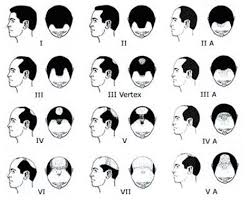 haircut numbers boy haircuts numbers haircut clippers number length pictures to