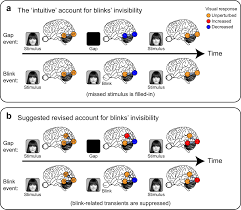 human intracranial recordings link suppressed transients rather