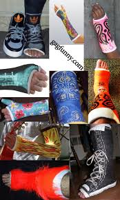 Decorated Walking Boot Cast Decorations Decorating Ideas