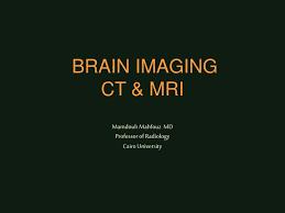 Ct Anatomy Of Brain Ppt Ppt Brain Imaging Ct U0026 Mri Mamdouh Mahfouz Md Professor Of
