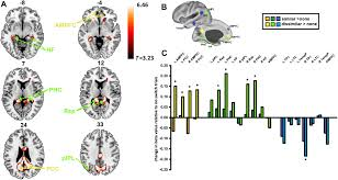 recruitment of the default mode network during a demanding act of