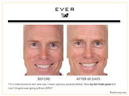 Challenge Used Skincare Challenge Results Regimen With Lsr10