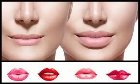 lip augmentation bucktown dental associates