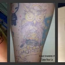 tattoo must go 10 photos tattoo removal 1780 s bellaire st