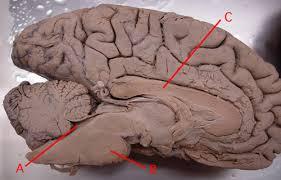 Sheep Brain Anatomy Game Neuroanatomy Lab Quiz Week 1
