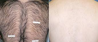 vectus laser hair removal reviews laser hair removal dr julia sabetta geenwich ct cosmetic surgeon