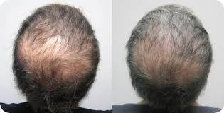 images of hair hair regrowth laser the aesthetic centre