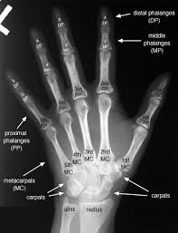 Normal Bone Anatomy And Physiology 8 Best Anatomy U0026 Physiology Images On Pinterest