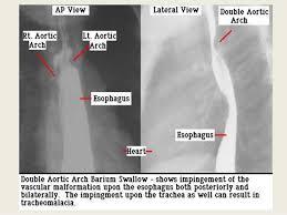 Radiology Anatomy Presentation1 Pptx Radiological Anatomy Of The Neck