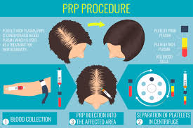 acell prp hair regrowth injection therapy fallon hair