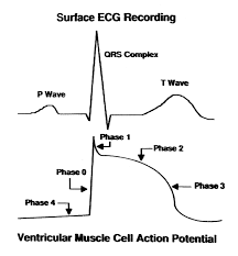 electrophysiologic mechanisms of the long qt interval syndromes