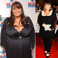 Awn French Dawn French Weight Loss Lost Massive Seven And Half Stone