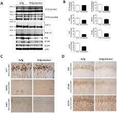 zileuton improves memory deficits amyloid and tau pathology in a