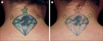 successful and rapid treatment of blue and green tattoo pigment
