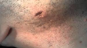 pubic hair on thigh ingrown hair scars on legs stomach bikini line pubic area c