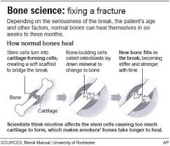 quit for faster bone healing health health care more