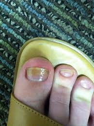 toenail fungus home remedies for better looking nails the ultimate nail fungus nail psoriasis and nail bed separation